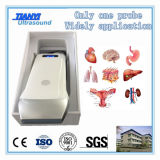 Scanner sans fil employé couramment d'ultrason