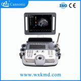Echo-Herzlaufkatze-Farben-Doppler-Ultraschall-Scanner