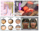 7 218 luces de colores Mini Facial rejuvenecimiento de la piel PDT la terapia de luz LED de la máquina