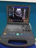 Couleur portative médicale bon marché Doppler de Digitals de machine d'ultrason
