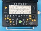 Sun-800c полностью цифровая B модель портативного ультразвукового сканера .