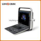 Systèmes portatifs d'échographie-Doppler de couleur d'équipement médical