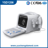 Full Digital Portable Ultrasound Scanner PC Baseado em Plataforma (YSD1206)
