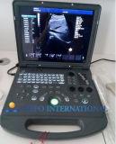 Ultrason portatif de Doppler de couleur de Digitals 3D pour l'hôpital