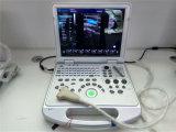máquina del ultrasonido de Doppler del color de la computadora portátil 2D/3D con la máquina portable del ultrasonido de Doppler