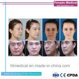 Hotselling Themagic Face Lift RF fractionnaire de la machine pour le serrage de la peau