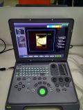 Draagbare Laptop van Doppler van de Kleur Ultrasone klank, dw-C60 Ultrasone Machine