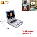 L'équipement hospitalier d'échographie Doppler 4D ordinateur portable pour la grossesse de la machine