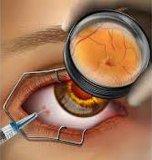 粘弾性がある眼の解決のためのHyaluronic酸のゲルの注入口の注入