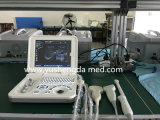 Sistema de diagnóstico médico calificado colmo del ultrasonido del equipo