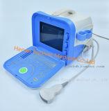 Écho blanc Doppler cardiaque d'ordinateur portatif de matériel portatif d'ultrason