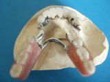 Marco del bastidor de Vitallium con las conexiones preciosas hechas en el laboratorio dental de China