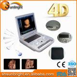 Big Promotion 15 pouces LCD 3D / 4D Ultrasound Sun-800e / 4D Echographie