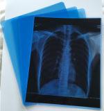 Secar la película de rayos X médicos de medicina de inyección de tinta azul Película
