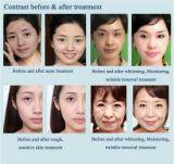 El agua de chorro de oxígeno Facial Peeling Profundo eliminar las arrugas más clara