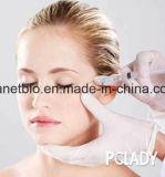 Ácido hialurônico Sofiderm Enchimento dérmica para remover rugas