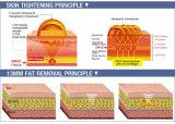 Ultrason orienté de forte intensité Hifu pour le régime de corps de déplacement de ride
