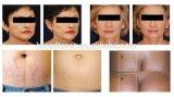 Вакуум RF кавитации удаления Cellulite тела контуря