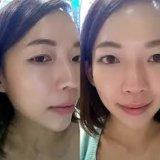 얼굴 모양을%s Singfiller 세륨 Hyaluronic 산 피부 충전물