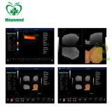 China-preiswertester medizinischer Portable-/Laufkatze-Typ volle Ultraschall-Scanner-Maschine Digital-Farben-Doppler-B mit Fühler