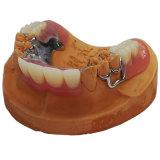 Métal Parital avec dents en acrylique moulé