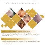 El Blanqueamiento de barro volcánico y reducir los poros claro Whitening Facial Cleanser
