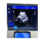 Couleur cardiaque Doppler d'onde entretenue d'ultrason d'écho à extrémité élevé