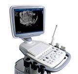 S11BW BW Sonoscape haute performance du système à ultrasons de systèmes de chariot