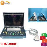 El modelo más reciente precio barato de la máquina de Ultrasonidos 2D Sol-800c