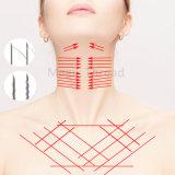 Elevador absorvente Coreia da linha de 3D Pdo com suturas farpadas