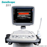 Sistema móvel da ecocardiografia de Doppler da cor do ultra-som S11 do trole de Sonoscape 3D 4D mais barato do que o ultra-som de Mindray