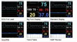 12 beweglicher Hand-ECG Monitor des Kanal-mit bestem Preis