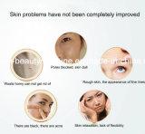Diamond Peeling Microdermabrasion Máquina Dermabrasion Dispositivo Consejos Filtro Limpieza Facial Limpieza del Acné Cuidado de la Piel Belleza Masaje