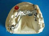Marco Titanium de la aleación con la conexión preciosa hecha en el laboratorio dental de China