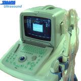 Scanner portatile di ultrasuono della visualizzazione dell'affissione a cristalli liquidi di vendita calda