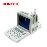 Contec Cms600b3 Cer-anerkannte Schwangerschaft-Ultraschall-Diagnosesystems-Ultraschalleinheiten