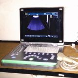 Digital-Ultraschall-Scanner des Laptop-3D voller