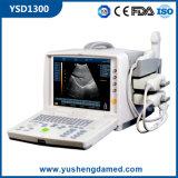 PC Plattform-preiswerteste medizinische Maschinen-beweglicher voller Digital-Ultraschall-Scanner