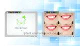 Cámara de alta calidad dental intraoral con monitor de 17 pulgadas WiFi coloridas 2.0 Megapíxeles (TJ02)