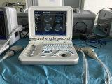 Ce diagnostic à ultrasons approuvé l'équipement hospitalier échographie portable numérique