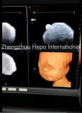 Ultrason médical de Portable de produit de Doppler de pleine couleur de Digitals 4D