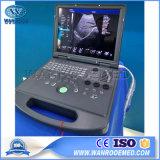 Оск60 Медицинское Оборудование портативных ультразвуковых систем с лучшим соотношением цена для беременности