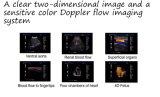 4D 트롤리 색깔 도풀러 초음파