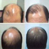 De Drug CAS van de Behandeling van het Verlies van het Haar van Minoxidil: 38304-91-5 met Hoogste Kwaliteit