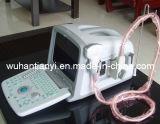 Geburtshilfe-und Gynäkologie-beweglicher Ultraschall-Scanner