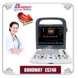 Équipement de diagnostic à ultrasons, Portabel Doppler couleur numérique complet, avec batterie rechargeable, moins de 5 kg