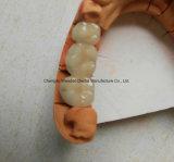 Dentadura de la corona de Pfm para la clínica del laboratorio dental chino
