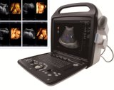 Cor vascular básica Doppler do sistema do ultra-som do diagnóstico da ginecologia e da obstetrícia