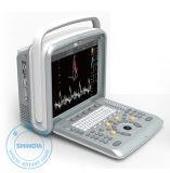 Bewegliche Veterinärultraschall-Scanner-Farbe Doppler (DopScan N9V)