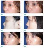 Melhor Qualidade Anti-Wrinkling injetáveis Cross-Linked depósito dérmico de injecção